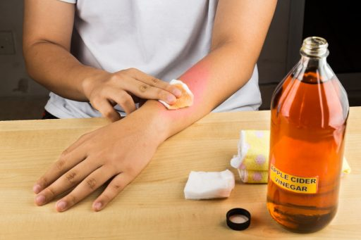 vinegar treatment for scabies