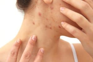 Scabies: 4 Foods To Avoid & 4 Foods You Should Eat - Scabies