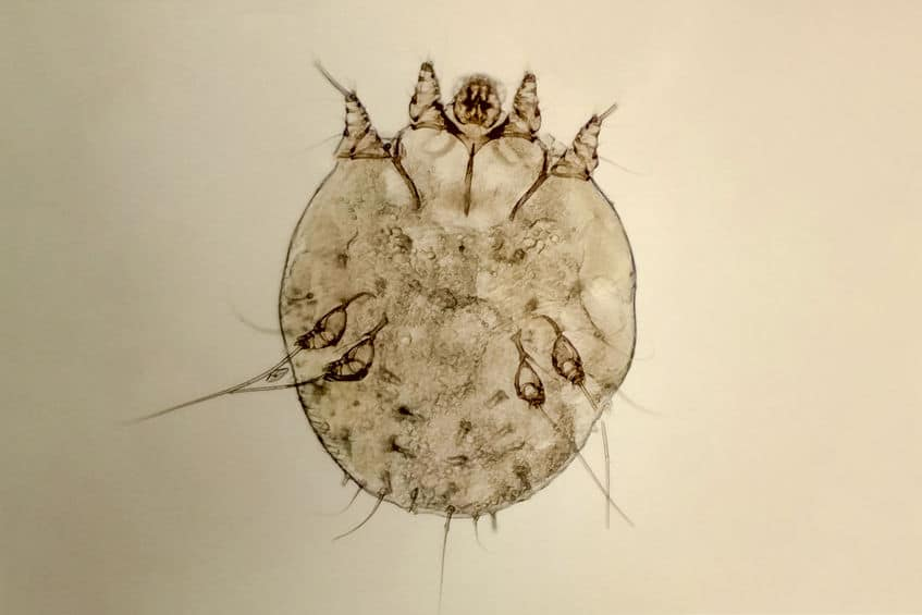 Read more about the article What Is Scabies? (Pictures, Cause, Symptoms, Treatments, Prevention)